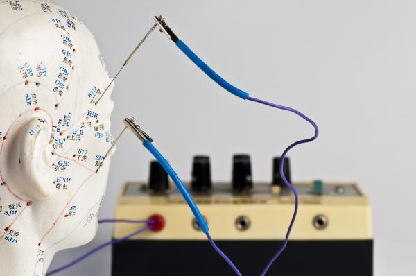 elektro akupunktur