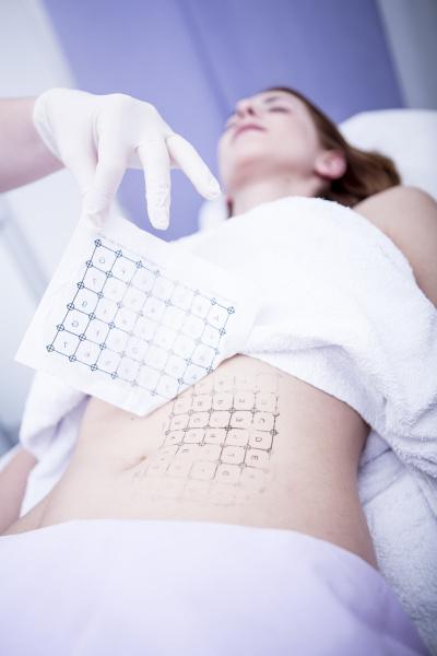 AEsthetische chirurgie hautstraffung