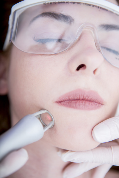 AEsthetische chirurgie co2 laser resurfacing