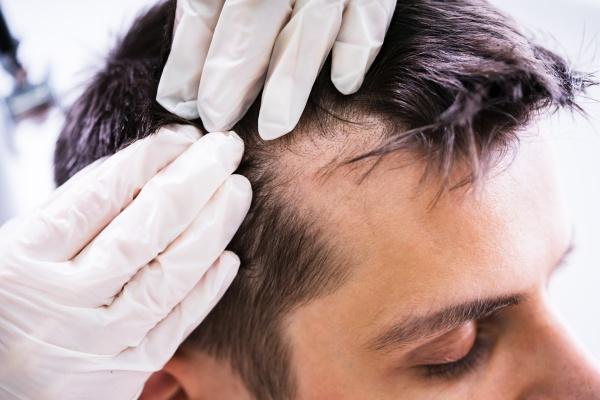 dermatologe ueberprueft die haare des patienten