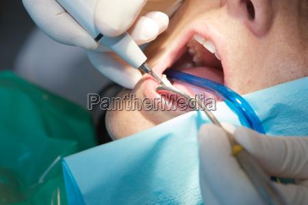 zahnarzt einen scan auf seine patienten