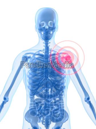 menschliche anatomie mit hervorgehobenen schulter