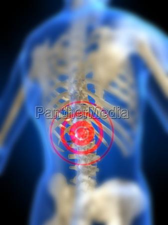 weibliche skelett schmerzhaft zurueck