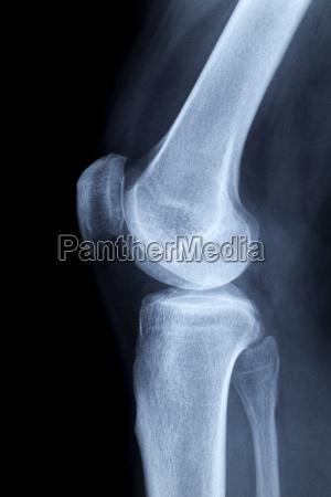 menschliches knie seitlich roentgenaufnahme ohne befund