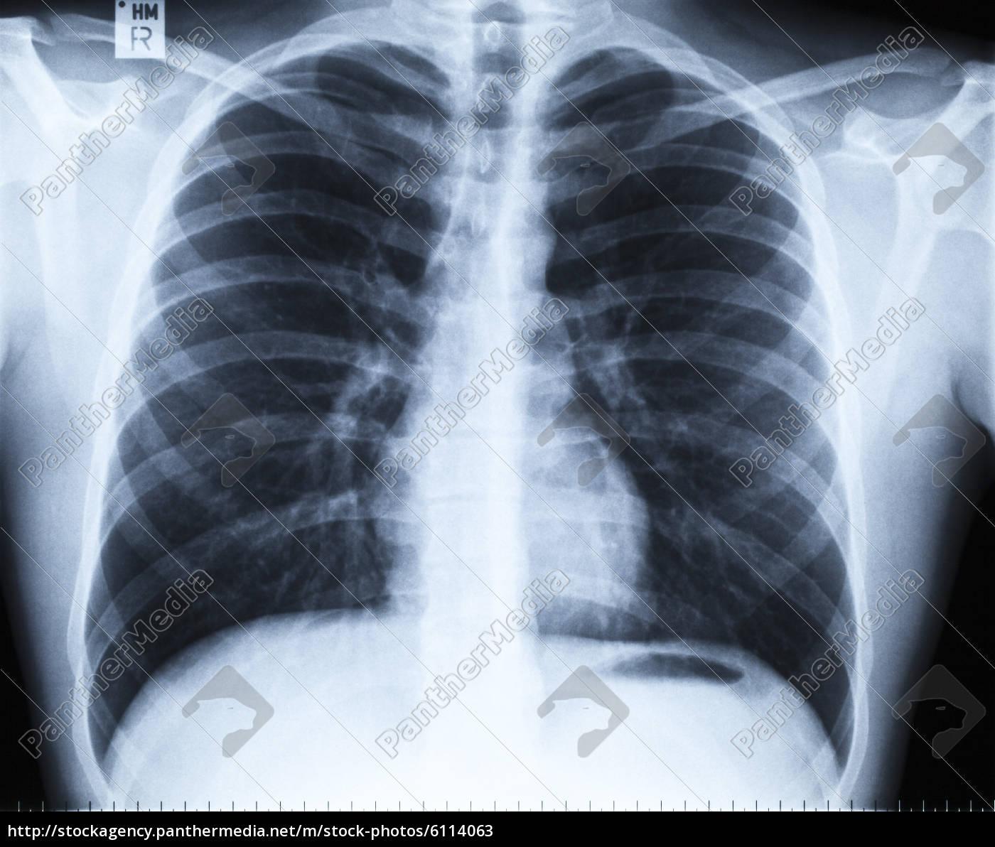Flecken Auf Lunge