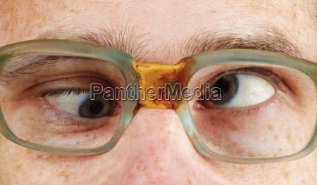 schielende person in altmodischen brillen