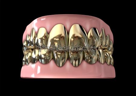 zaehne zahnarzt golden offen zahn oeffnen
