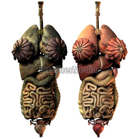 kranke und gesunde innere organe der
