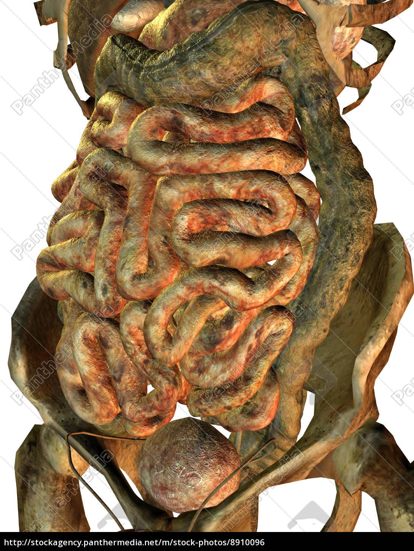 männliche kranke innere Organe - Lizenzfreies Foto - #8910096 ...