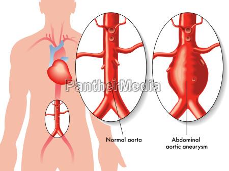 medizinische darstellung der auswirkungen des bauchaortenaneurysma