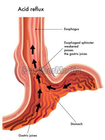 medizinische illustration von den auswirkungen der