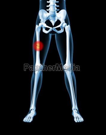 weibliche skelett mit gebrochenem bein knochen - Stockfoto ...
