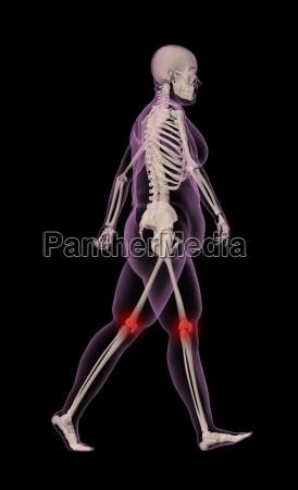 UEbergewichtige weibliche skelettwanderung