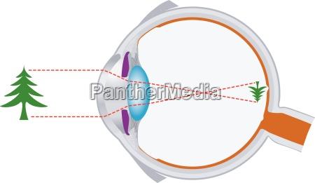 eyeball optics and sehlinsensystems