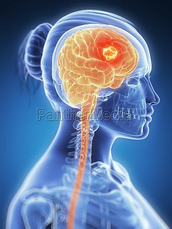 3d rendered illustration brain