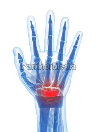 3d rendered illustration of the carpal
