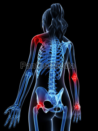 3d rendered illustration of painful joints