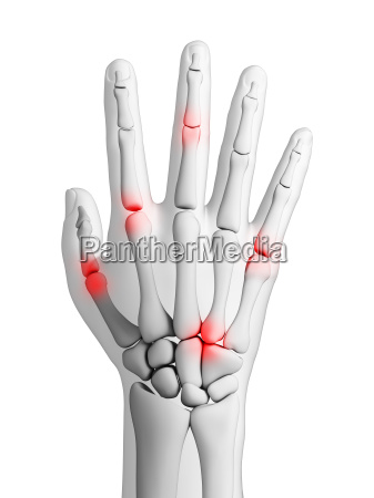 3d rendered illustration arthritis