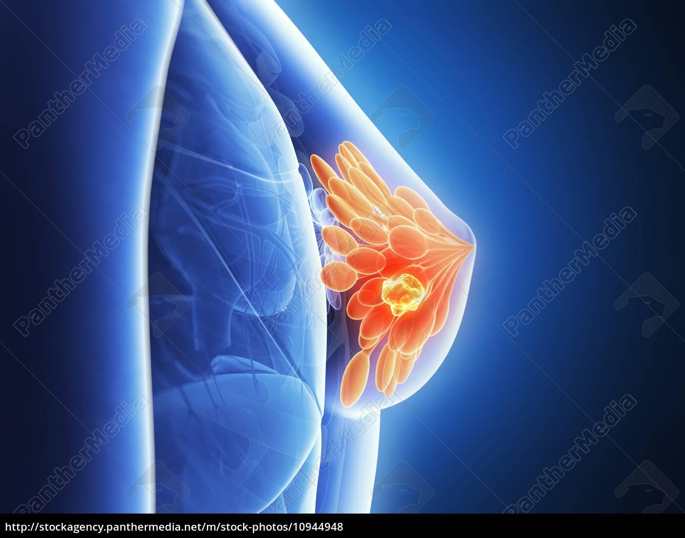 3d, gemachte, illustration-brustkrebs - 10944948