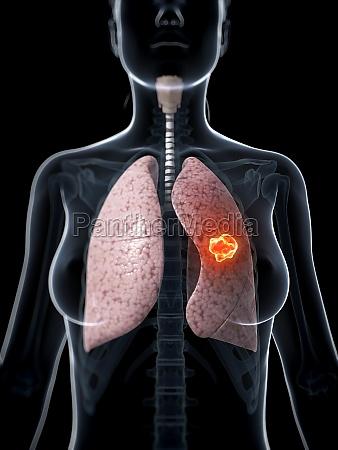 3d rendered illustration of lung cancer