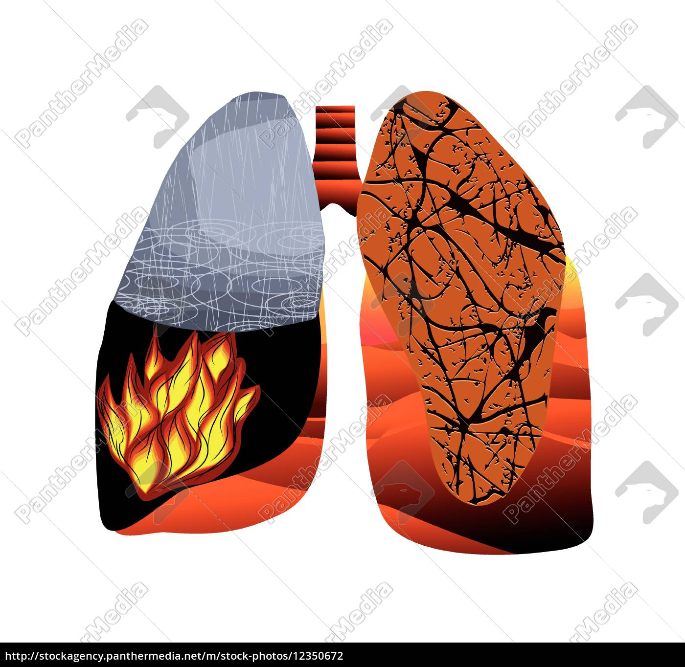 tuberkulose - 12350672