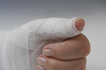 handverletzung