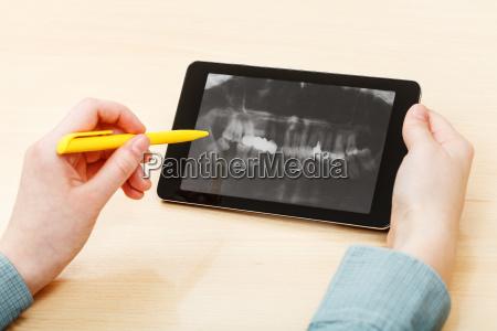student analysiert menschlichen kiefer auf tablet
