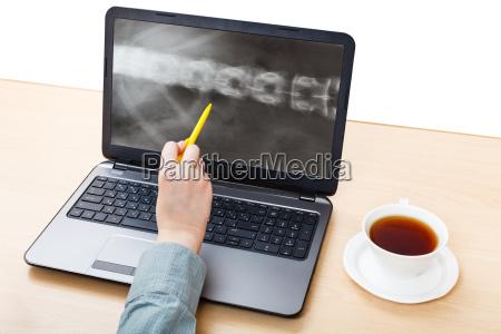 sanitaeter analysen auf laptop roentgenbild der