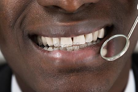 arzt tun zahnaerztliche kontrolle von patienten