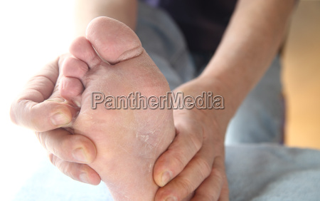 man with athletes foot itchy skin