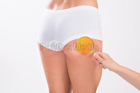 therapeut zur analyse von fetten auf