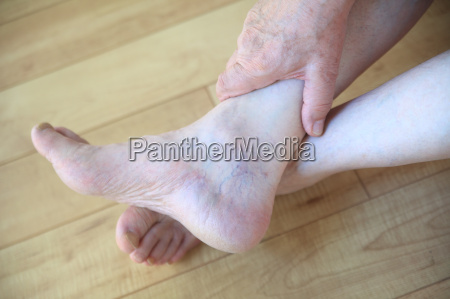 spider veins on ankle of man