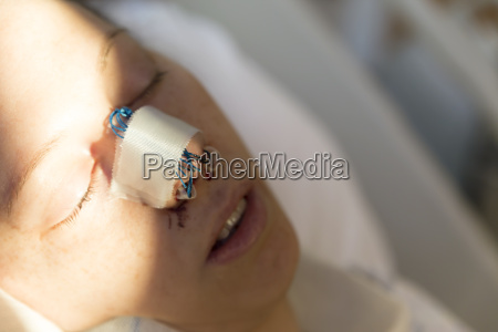 patient after a nose operation