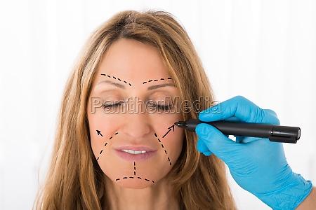 chirurg zeichnung korrektur linien auf frau