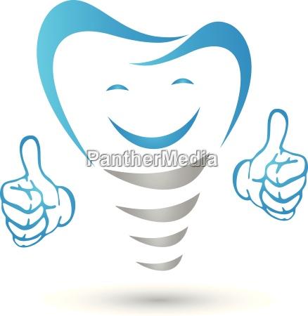 dental implant dental implant with hands
