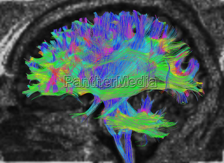 diffusion mri also referred to as