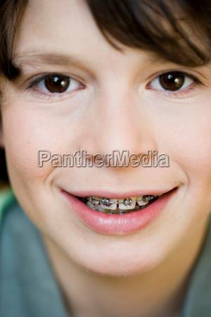 portrait boy with brace