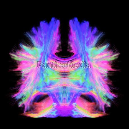 vollstaendige hirntraktographie mit kuenstlerischer farbe dies