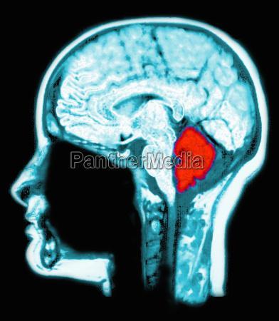 mri scan of the brain computer