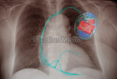 chest x ray showing an implanted