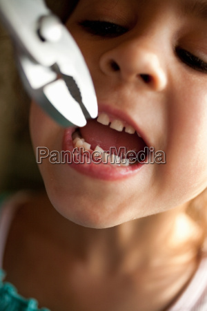 girl pulling out tooth with pliers
