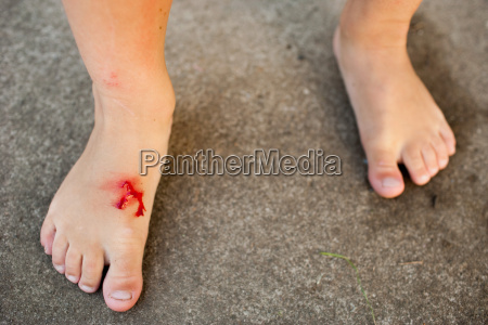young girl with cut foot