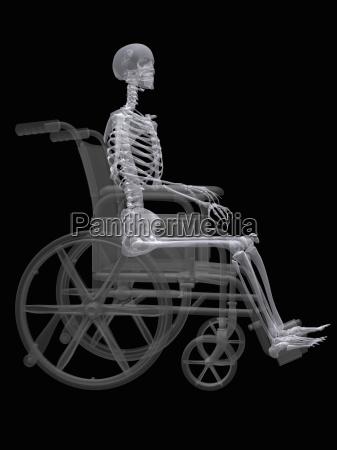 illustration eines skeletts in einem rollstuhl