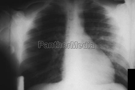 brust roentgen der lungeninfektion bei pest