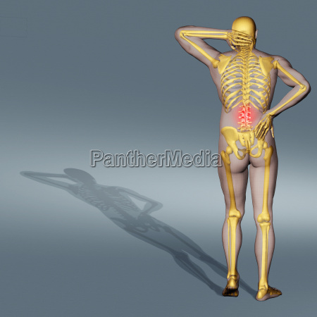 computer generated illustration of back pain