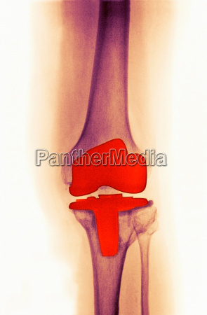 knee replacement for djd in a