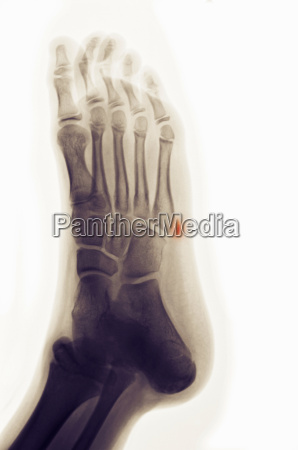 x ray of foot showing avulsion