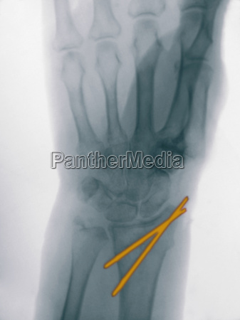 x ray of a radius fracture