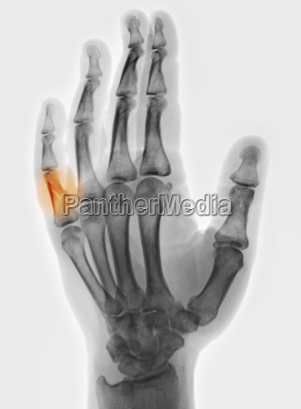 x ray of hand with fracture