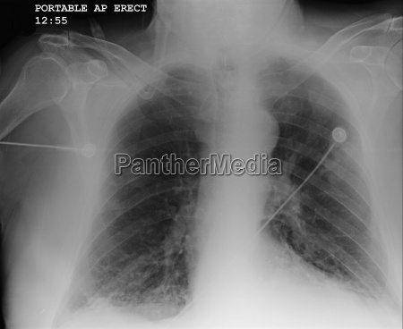 x ray of chest showing copd
